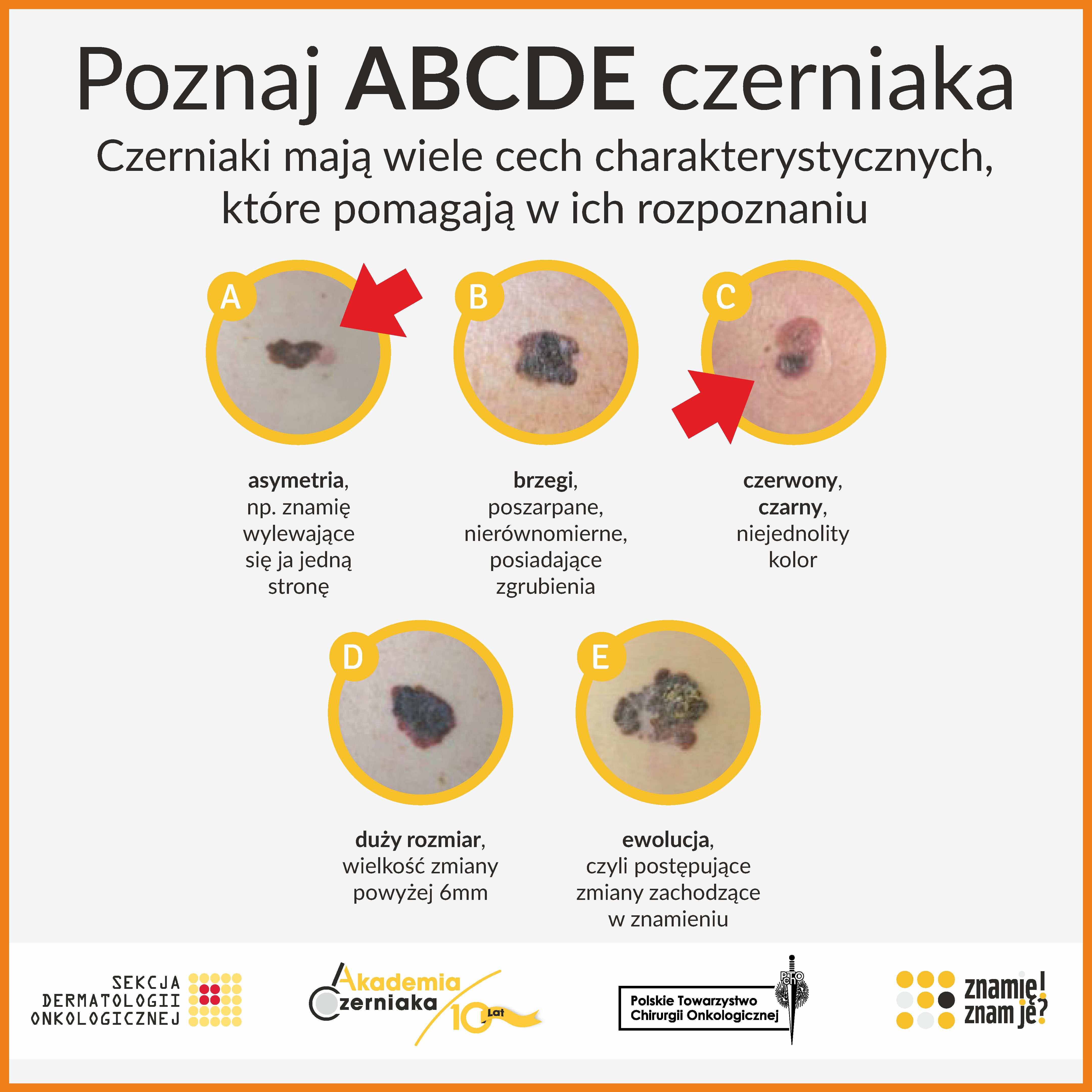 ABCDE czerniak